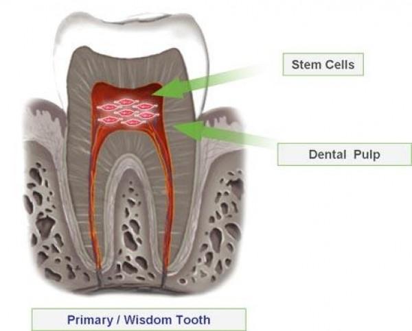 Cellule Staminali di provenienza dalla Polpa Dentale